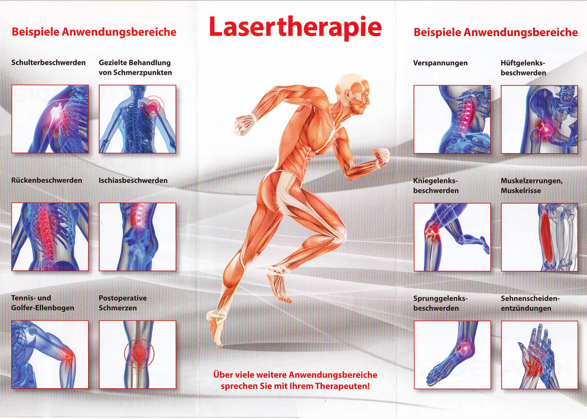 Anwendungsgebietete_K Laser